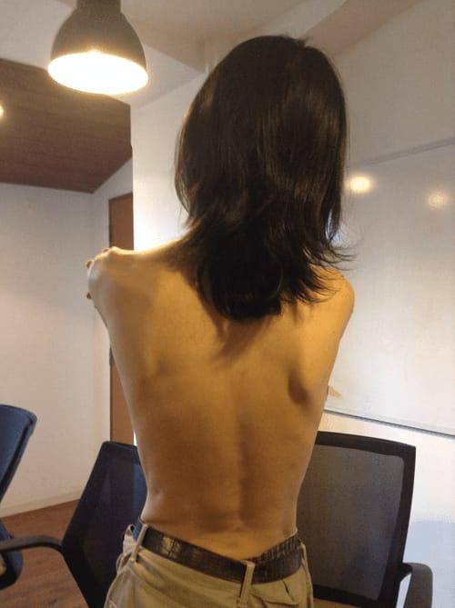 10代の頃、エロ画像として僕の背中がチェーンメールで回った。さすがに10年以上経ったら女には見えないねwww。by Shinnoji